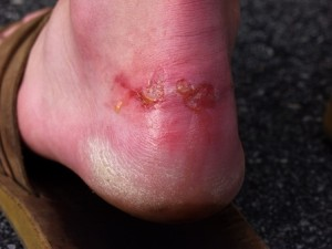 Foot_Blister_web