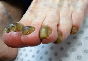 New Breakthrough for Fungal Nails and Toe Nail Fungus Treatment
