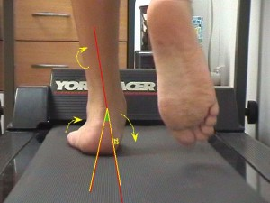 podiatry_care_gait_analysis