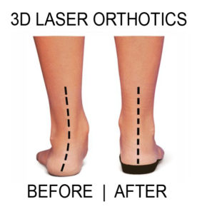 flat-feet-pronation-before-and-after-orthotics