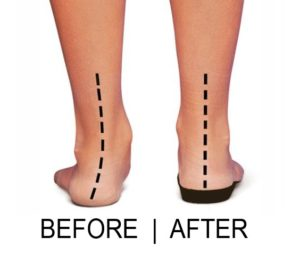 pronated-feet