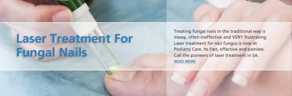 lasertreatment